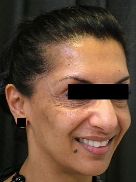 tired_eyes_before_juvederm