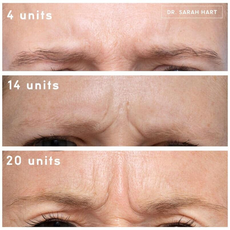 botox myths debunked by research