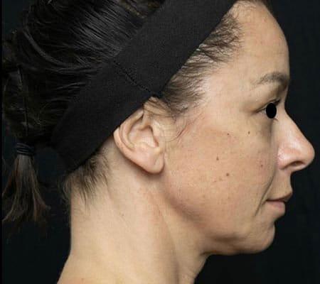 Derma Filler - After