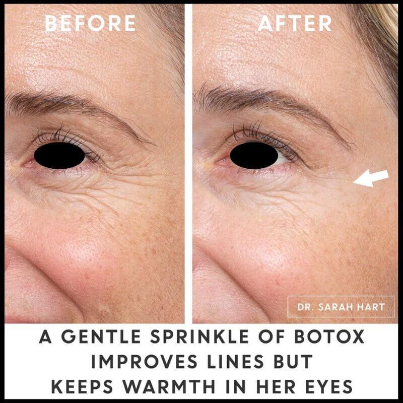 botox to improve lines
