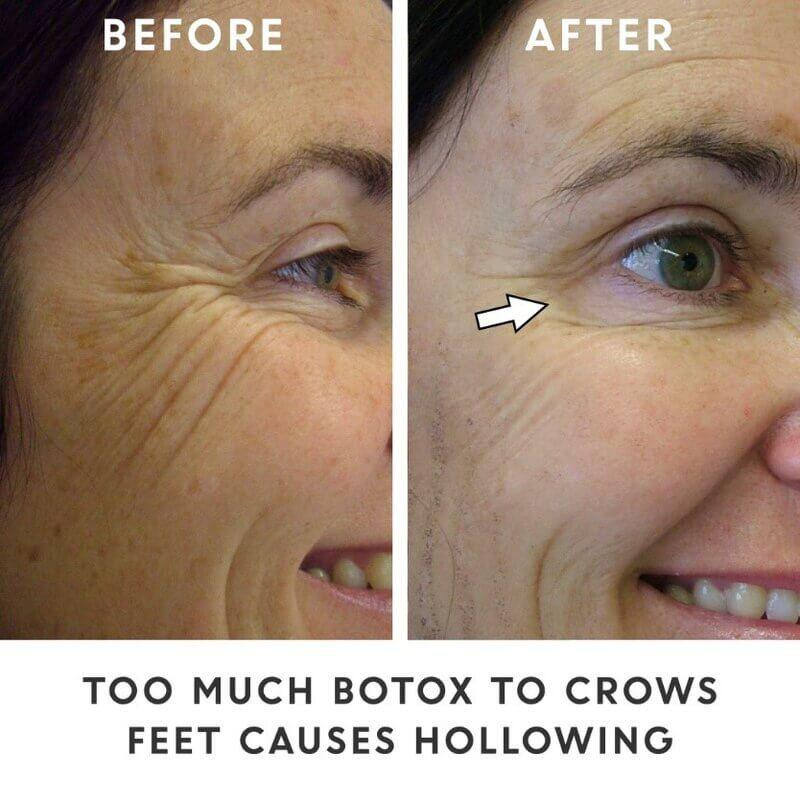 before and after photos of crows feet
